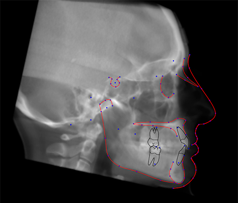 CephX-Cephalometric-Analysis-from-CBCT