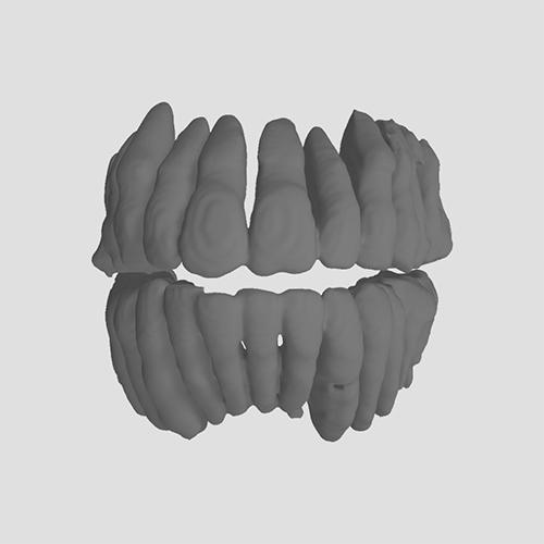 Teeth-Segmentation_CephX_after1
