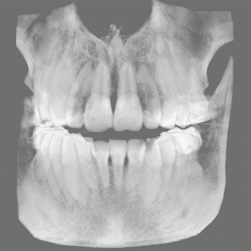 Teeth-Segmentation_CephX_before