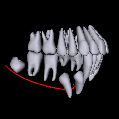 Automated teeth segmentation by CephX